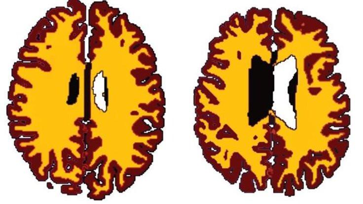 Kilolu olanların beyni hızlı yaşlanıyor