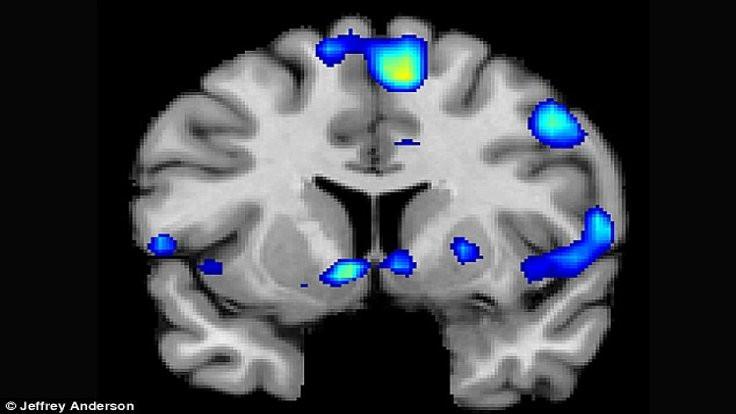 Din, seks ve uyuşturucu beynin aynı yerinde
