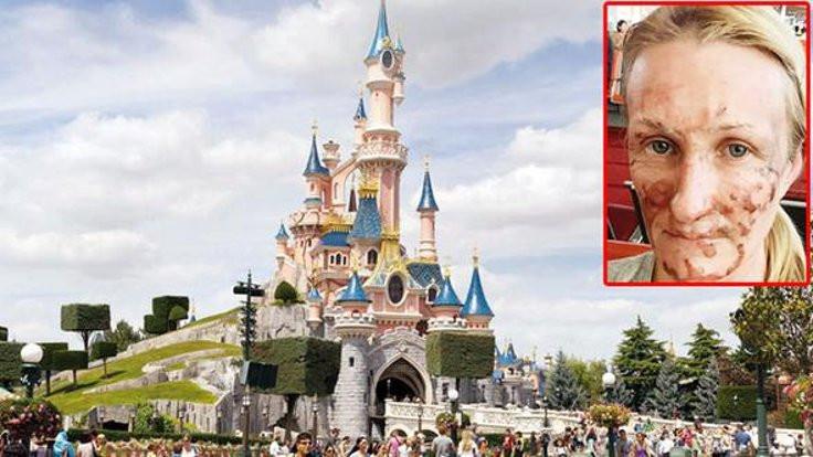 'Disneyland'de yandım' davası