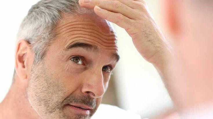 Saç ekimi sürecinde neler yaşanır?