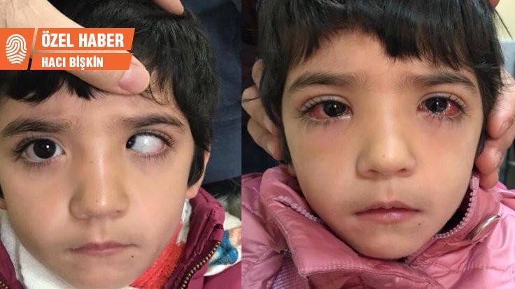 Sazan Kaçan'ın gözleri de düzeldi