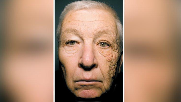 Yüzünün yarısı 20 yıl daha hızlı yaşlandı!