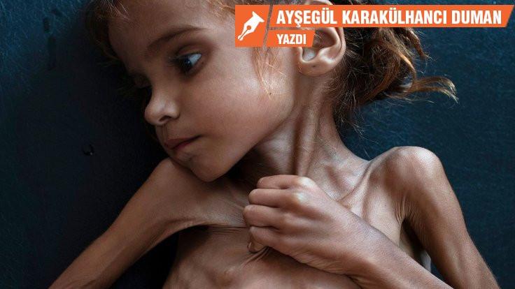 Yemen'de umut öldü!