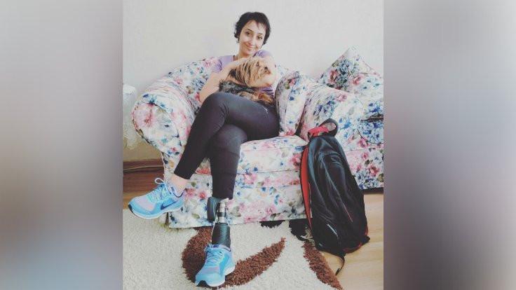 10 Ekim'de bacağı kopan Karakuş'a protez desteği