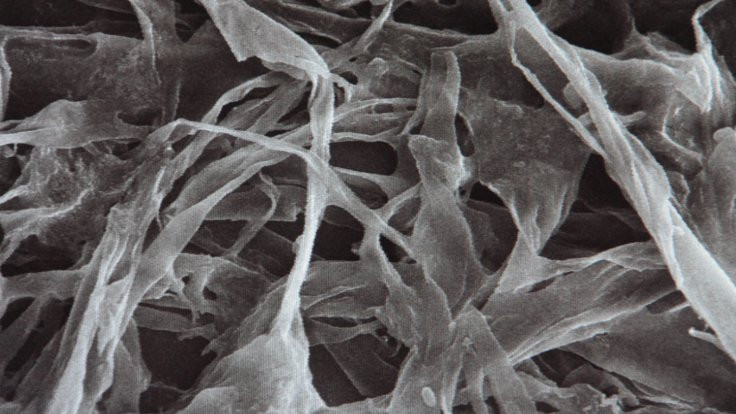 Naylonu yok eden bakteri