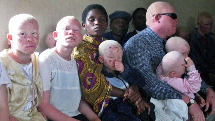 Senegal'de albinosların yüzde 98'i kanser