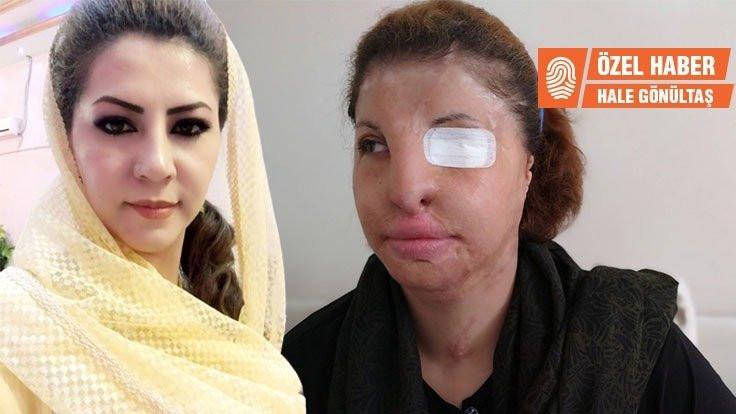 Asitli saldırıyla yaralanan Nefise Ajuri: Devrimimi yaptım, geri dönmem