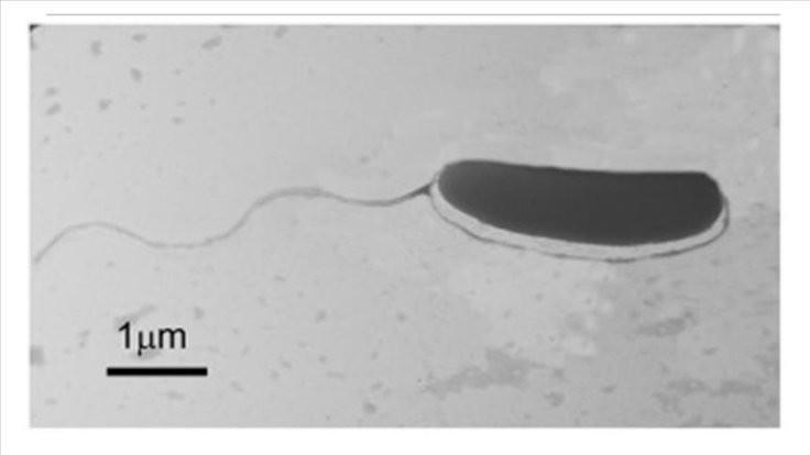 Sivas'ta bakteri keşfedildi