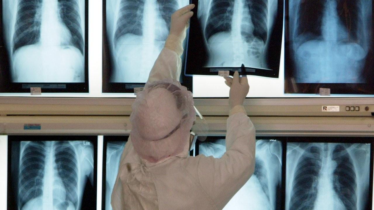 Xenon gazı ile akciğer taraması: Covid'in etkilerini netleştirdi