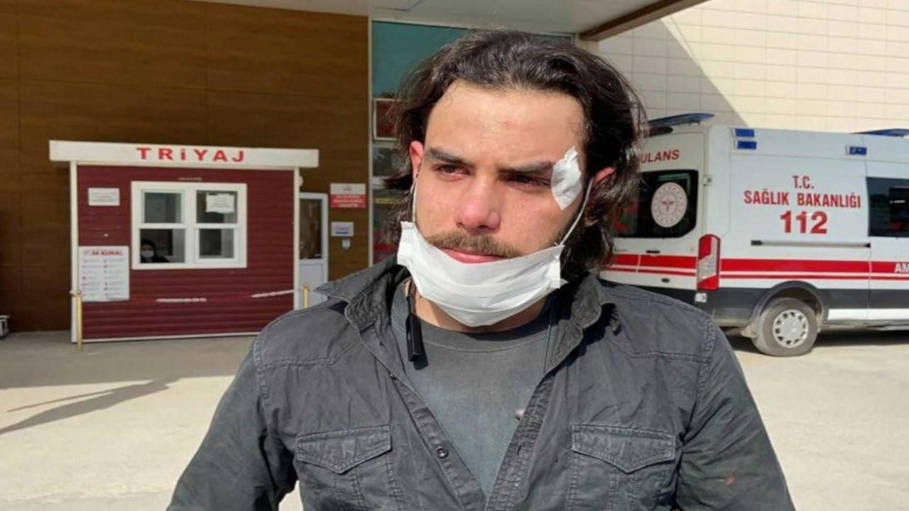 Patron alacağını isteyen mülteci işçiyi dövdü