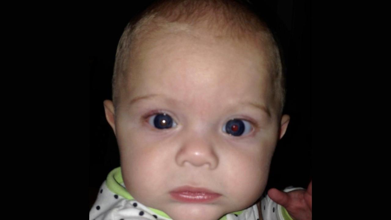 Telefonla çektiği fotoğrafla oğlunun göz kanseri olduğunu öğrendi