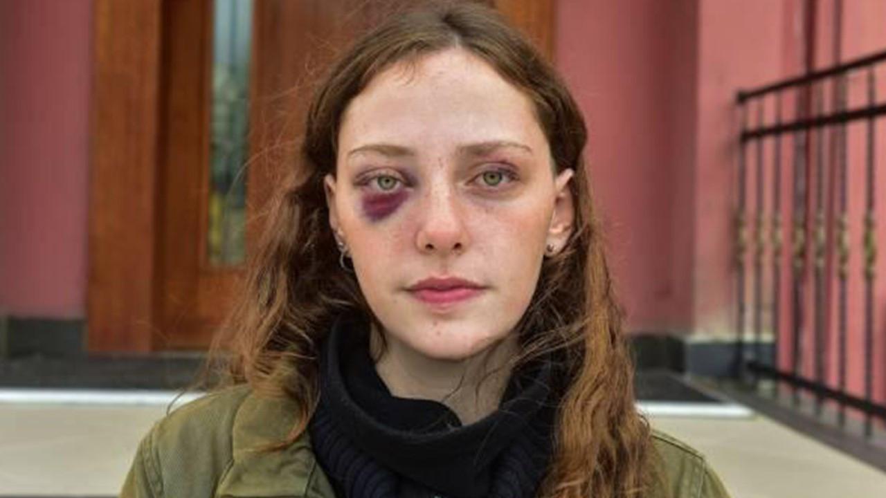 Mısra Sapan: Polisler özellikle yüzümüze vurdular